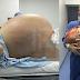 Doktor keluarkan Cyst 33kg dari perut wanita berusia 24 tahun