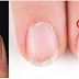 Do you know what the half moon shape on your nails means? THIS Is What It Means.!