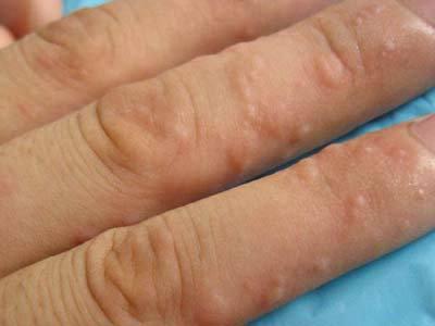 手指癢 一粒一粒 令人困擾的「汗皰疹」