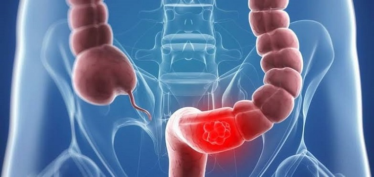 6 Ways to Diagnose Colon Cancer