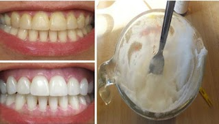 This Amazing 2 Ingredients Will Naturally Whiten Your Teeth