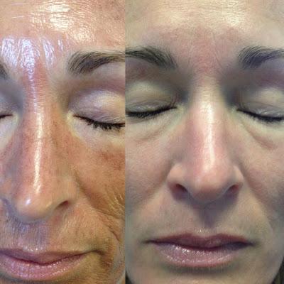 Elite Therapeutics Body And Skin Care Jessner Peel