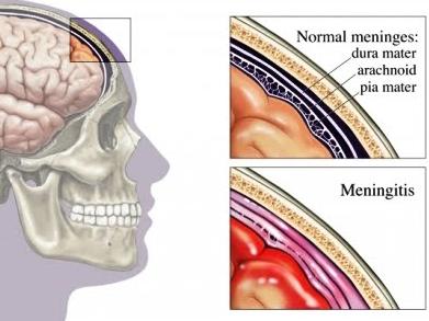 Obat Radang Selaput Otak Yang Ampuh