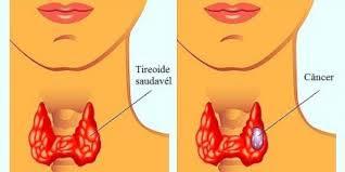 imagem-de-cancer-de-tireoide