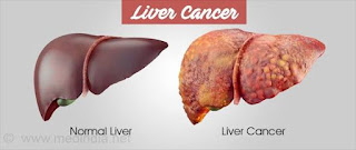 EARLY SIGNS OF LIVER CANCER