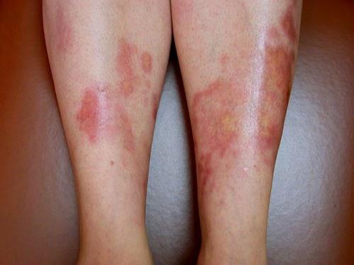 enfermedades de la piel por diabetes