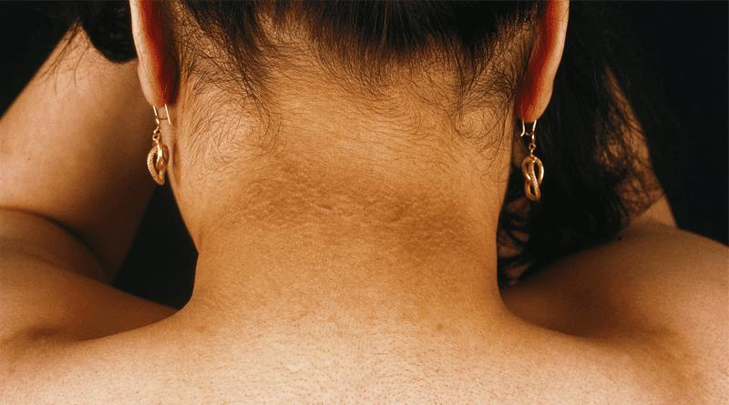 dark neck, dark body parts home remedies