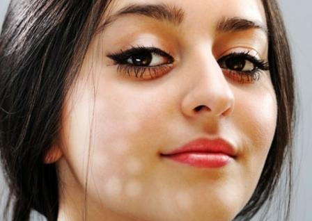 12 Cara Menghilangkan Tratak Pada Wajah Secara Alami