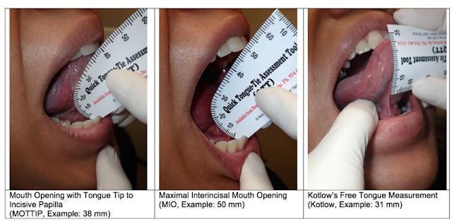 Ferrés-Amat Fonksiyonel Dil Bağı Sınıflandırılması - Maksimum insisiv dişler arası ağız açıklığı (maximal interincisal mouthopening / MIO) - Maksimum insisiv dişler arası ağız açıklığı (maximal interincisal mouthopening / MIO) - Tongue range of motion ratio - Dil aralığı hareket oranı - TRMR