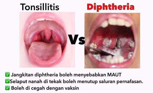 perbezaan jangkitan tonsil dan jangkitan kuman difteria, beza antara tonsillitis dan diphtheria, tanda-tanda, gejala, simptom tonsil dan difteria, perbezaan kesan sakit tonsil dan difteria terhadap kanak-kanak, beza cara merawat tonsil dan difteria