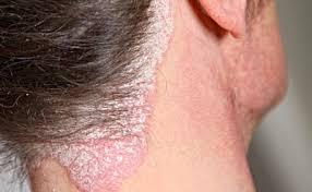 Image Gatal Eksim di Leher dan pengobatanya