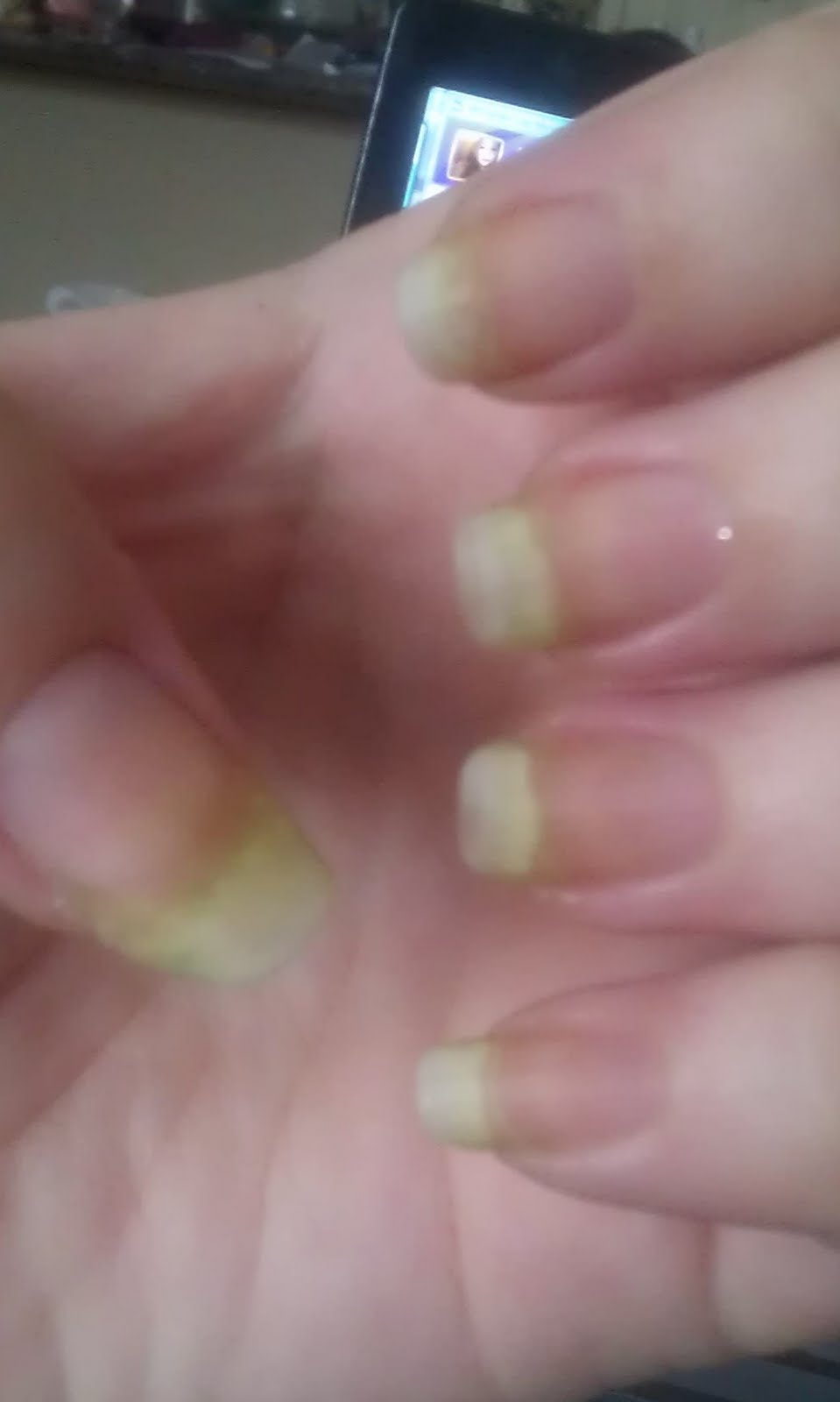 How to Get Rid of Nail Discoloration