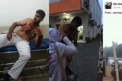 Inilah, Foto-foto korban Dari FPI Atas Penyerangan Mobil Usai Habib Rizieq Diperiksa