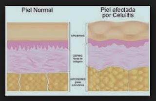 remedios caseros tipos celulitis