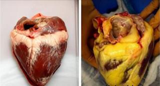 10 Aliments qui nettoient vos artères naturellement et vous protègent contre les crises cardiaques