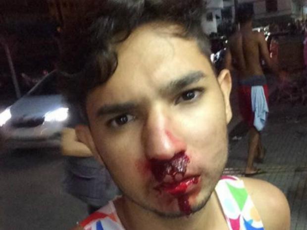 Jovem agredido por homofobia em Barra Mansa registra queixa na polícia
