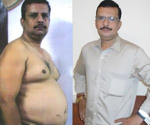 """Query dr rahul mongia weight loss aiims doctor discovers weight loss dr rahul mongia aiims weight loss rahul mongia weight loss dr rahul mongia aiims rahul mongia aiims aiims doctor garcinia cambogia aiims doctor discovers shockingly simple way to lose 1kg per day """"aiims doctor discovers shockingly simple way to lose 1kg per day without  diet or exercise"""" dr. rahul mongia aiims garcinia cambogia weight loss medicine by aiims doctor doctor rahul mongia dr. rahul mongia aiims doctor weight loss medicine aiims doctor discovers shockingly dr.rahul mongia dr. rahul mongia aiims peter molnar mit weight loss aiims doctor invention for weight loss aiims doctor weight loss aiims doctor research on weight loss dr rahul mongia rahul mongia garcinia cambogia aiims doctor dr rahul mongia wikipedia aiims doctor medicine for weight loss weight loss aiims doctor rahul mongia aiims weight loss loma linda university medical center weight loss by aiims doctor aiims doctor discovers shockingly simple way to lose weight aiims weight loss """"aiims doctor discovers shockingly simple way to lose weight without diet or  exercise"""" dr mongia slim now by aiims doctor doctor discovers 5.7 pounds in kg lose 28 kg in 30 days aiims doctor news can i lose 1kg per day aiims doctor list weight loss clinic in chennai weight loss clinic in hyderabad how to lose 1kg per day without exercise slim now rx medical weight loss clinics liquefies site:blogspot.com """"post a comment"""" organic food"""