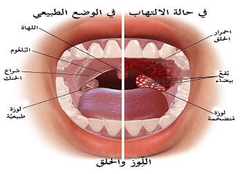 علاج التهاب الحلق Sore throat، اعراض التهاب الحلق Sore throat، اسباب التهاب الحلق Sore throat، ادوية التهاب الحلق Sore throat.