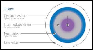 Multi-Focal Contact Lenses