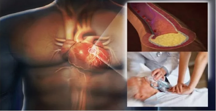 5 Foods That Cause Heart Attacks