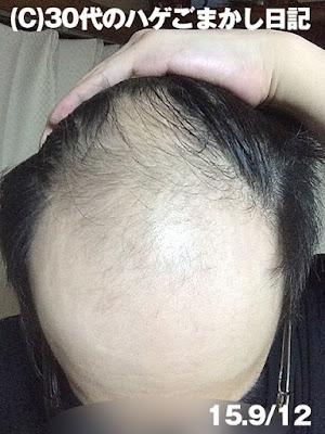 2015年9月12日育毛の様子