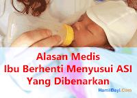 Alasan Medis Ibu Berhenti Menyusui Bayi dengan ASI