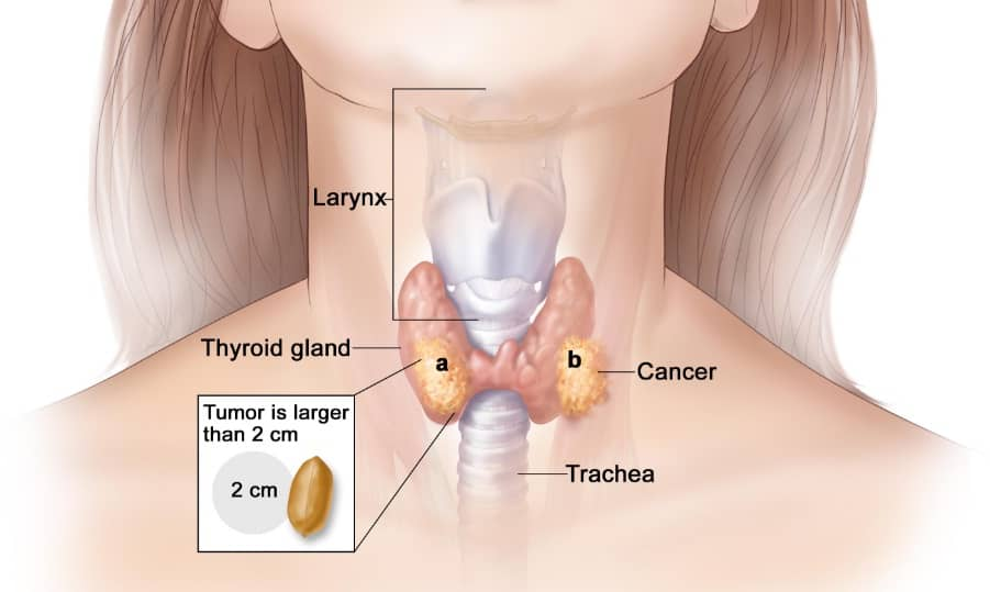 Stage 4 Thyroid Cancer Life Expectancy Canceroz