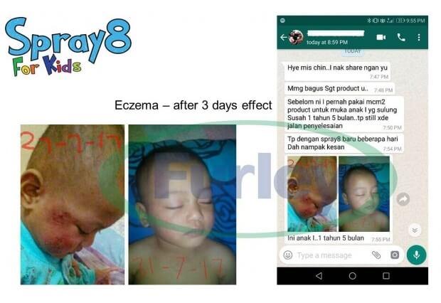 ekzema, eczema