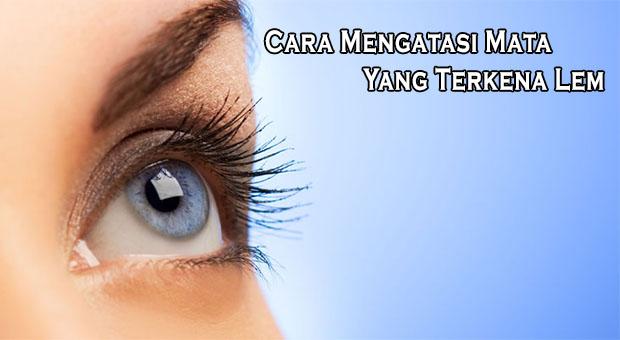 Cara Mengatasi Mata Yang Terkena Lem