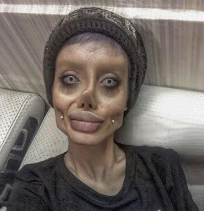 Obsessed Iranian Undergoes 50 Surgeries to Look Like Angelina Jolie (Video)