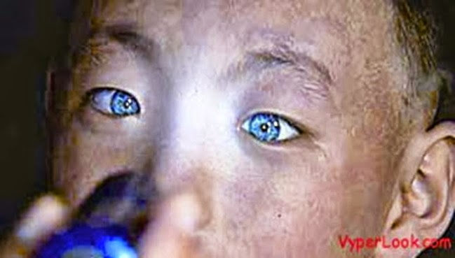 Chinese Boy With Ability To See In Pitch Black Stuns Medics