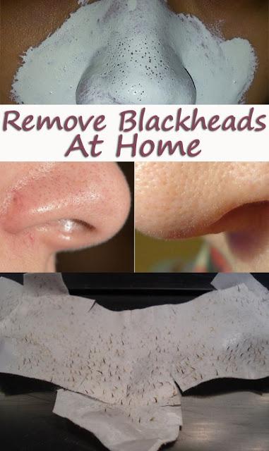 Remove Blackheads in a Natural Way - Fashion Accessories ... - photo#32