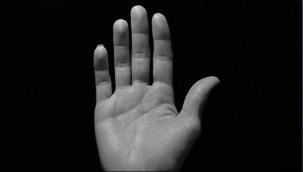 Arti Telapak Tangan Gatal