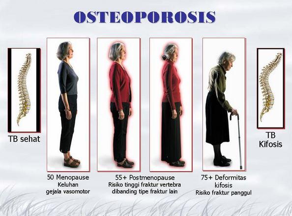 Jenis osteoporosis