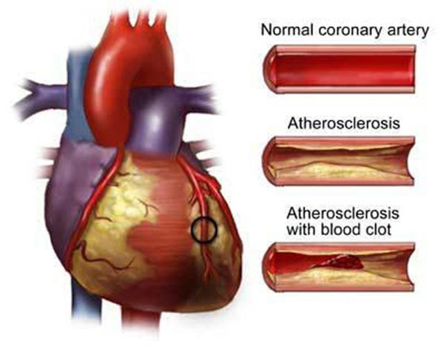 Coronary Heart Disease: Prevention and Healthy Life to Survive It