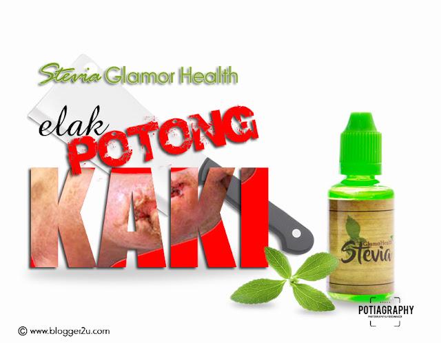 Elak potong kaki dengan Stevia Glamor Health