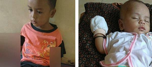 Muhammad Haikal Nasution dan adiknya Habibah Zakira Nasution yang menderita kulit melepuh.