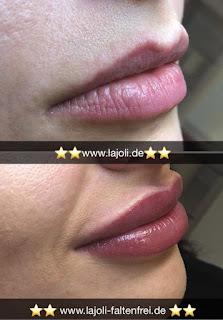 Lippen Permanent Make Up kombinieren mit Lippen aufspritzen