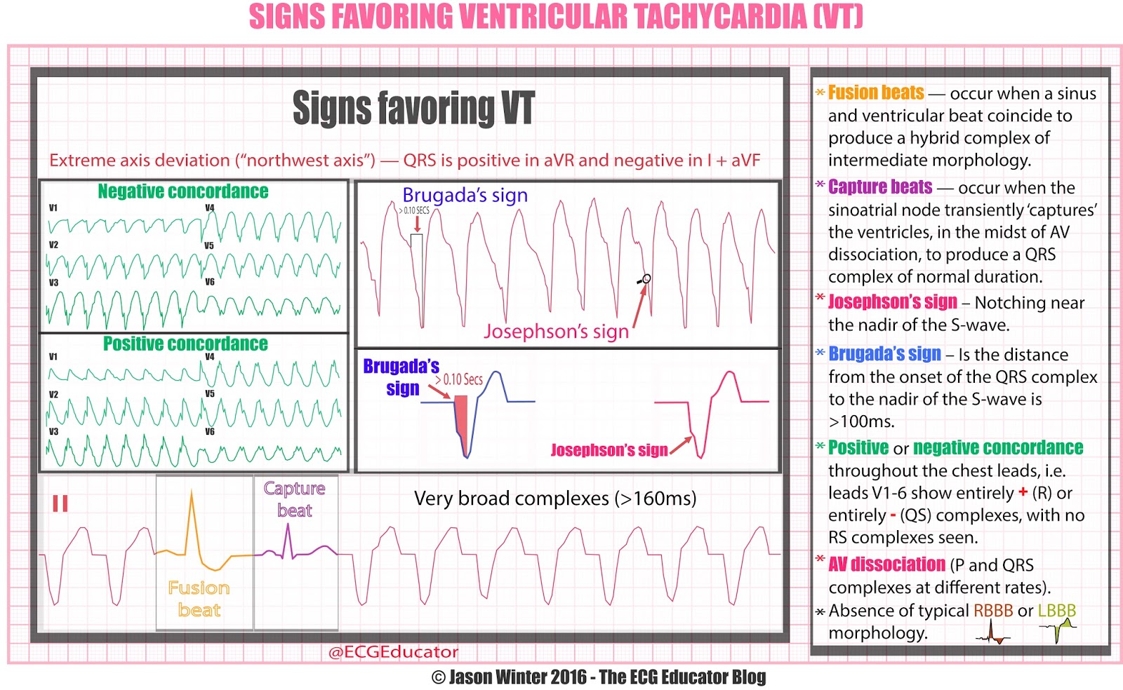 Ecg Educator Blog  Is It Vt?. Mimosa Signs. Fish Restaurant Signs Of Stroke. Post Office Signs. Fat Pad Signs. Contralateral Homonymous Signs. Poor Digestion Signs. Metal Wall Signs. Award Winning Signs
