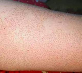 Dicas para tratar foliculite nas pernas e bumbum
