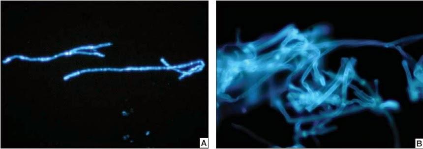 Staining Procedure for Rapid Identification of Fungi   Tuyenlab