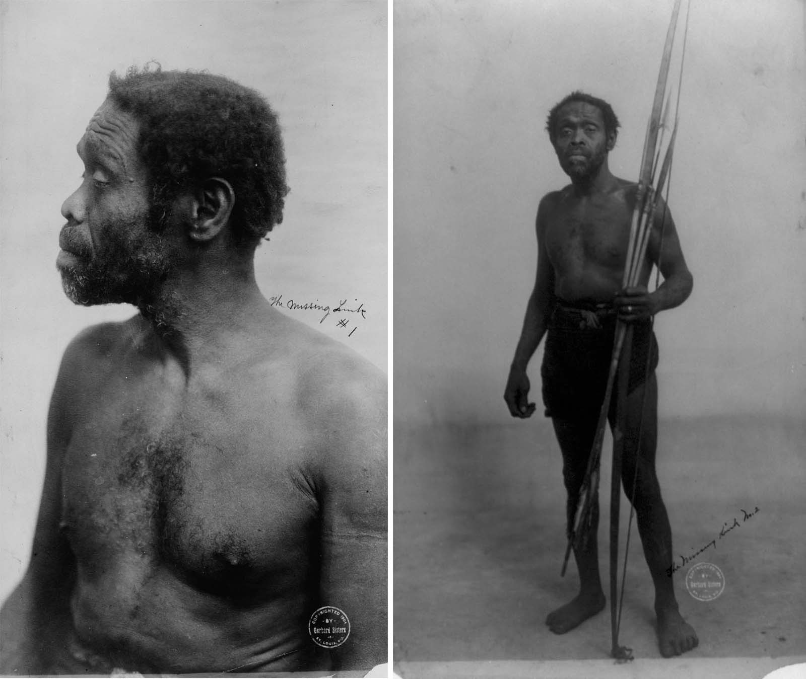 This unidentified African man was cruelly displayed as an exhibit at the 1904 St. Louis World's Fair in Missouri. The words 'the missing link' were scrawled on both of the photos.