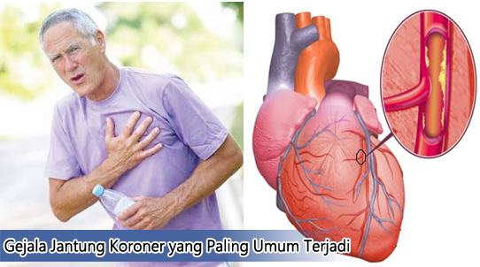 Gejala Jantung Koroner yang Paling Umum Terjadi