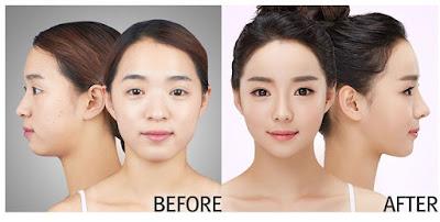 wonjin beauty medical group plastic surgery case undercover 4