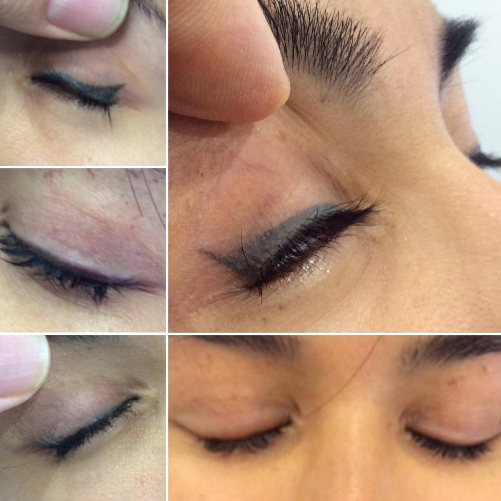 Eyeliner Tattoo Removal Process and Success