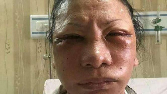 Ratna Sarumpaet Dipecat dari Badan Pemenangan Nasional Prabowo-Sandi