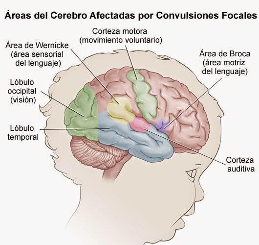 Que pasa en el cerebro mientras la persona convulsiona