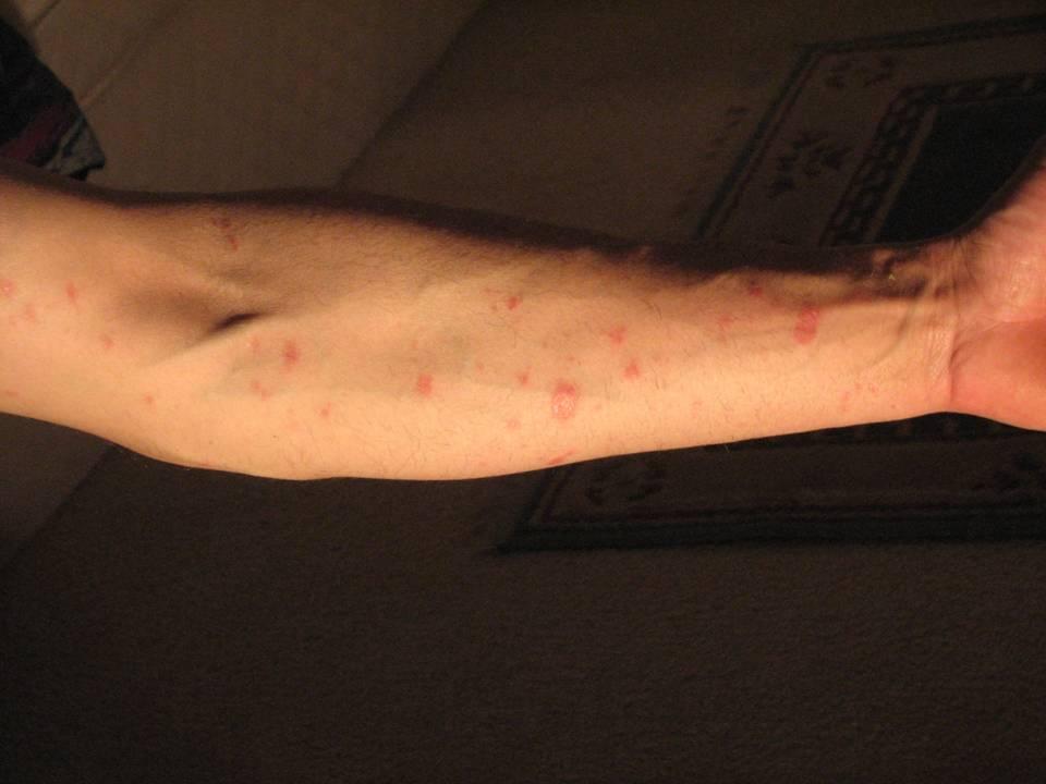 La clínica del tratamiento de la psoriasis las revocaciones