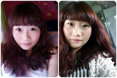 Sebelum operasi plastik hidung Korea