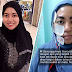 'Bila doktor kata tak dapat buat apa-apa, baru menitis air mata' - Wanita ini kongsi pengalaman hidap Bellpalsy dan cara merawatnya